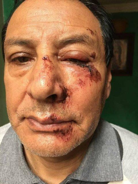 Atracaron y golpearon al presidente del Club Kiwanis en Ipiales