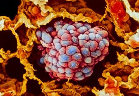 ¡Nuevo descubrimiento! FDA aprueba el primer fármaco para cualquier tipo de cáncer
