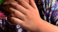 Mujer 'hirvió' a su hija por 10 horas para liberarla de demonios