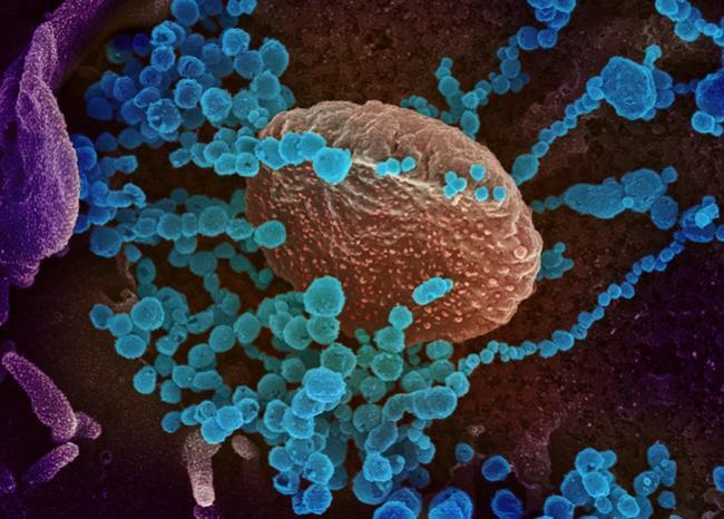 Identifican un fármaco, aún en pruebas, capaz de bloquear el coronavirus