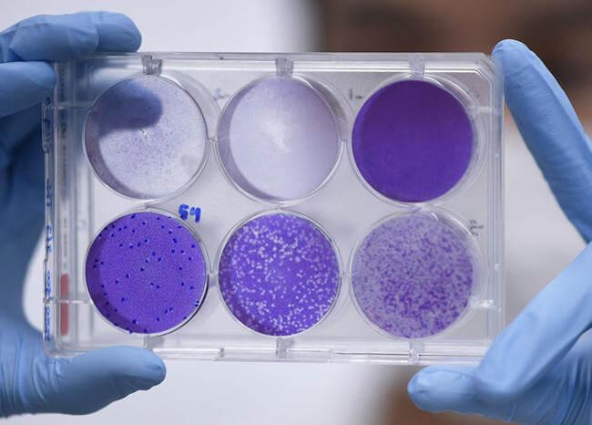 China declarará «bien público mundial» eventual vacuna contra COVID-19